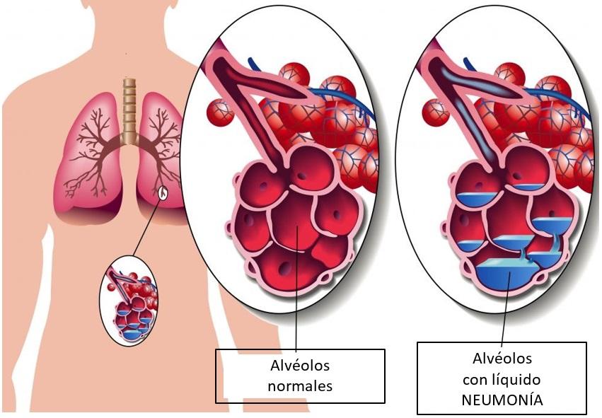 neumonia1