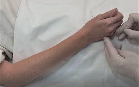 Equilibrar el qi del Pulmón con acupuntura